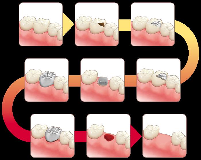 虫歯治療の繰り返し-二次カリエス